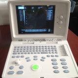 Full Digital B / W Portable Ultrasound Scanner Ce Aprovado PC Baseado
