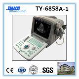 安い製造業者の携帯用超音波のスキャンナー