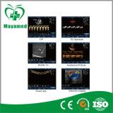 Uso especial de Digitaces de la alta precisión del color de Doppler del explorador cardiaco médico del ultrasonido para la examinación cardiaca y la cirugía cardiaca