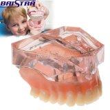 [هيغقوليتي] [أفردنتثر] سفليّة أسنانيّة أسن نموذج مع 4 نسيج مزدرع