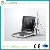 A melhor máquina portátil do ultra-som para o Gynecology