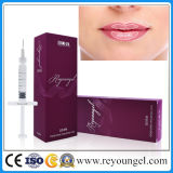 Reyoungel Hyaluronic 산 Artefill 피부 충전물 주입
