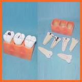 Modèle dentaire de dents de décomposition de Canies pour éducatif