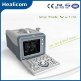 Scanner portatif d'ultrason de mode des nouveaux produits B (HBW-5)