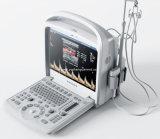 Heißester Farben-Doppler-Ultraschall der Ausrüstungs-4D beweglicher