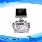 病院のSonoscape医学の携帯用および移動式4Dカラードップラー