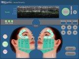A máquina focalizada a mais atrasada da remoção do enrugamento do corpo de Hifu do ultra-som da intensidade elevada