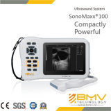 Scanner portatif de l'ultrason Sonomaxx100