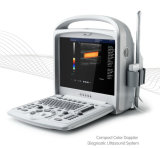 Machine portative d'échographie-Doppler de la couleur 4D de prix bas pour la veine foetale Vasculars