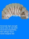 치과 E 최대 크라운 사용 세륨 물자