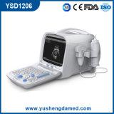 Varredor portátil abdominal Ysd1206 do ultra-som de Digitas da bexiga médica do ISO do Ce