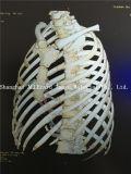 ¡Venta caliente! Película de radiografía médica de la impresión por láser
