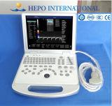 Ultrason 3D portatif diplômée par OIN de la CE pour l'hôpital