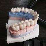 As máquinas de trituração dentais abrem o sistema dental da solução