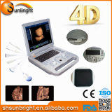 Sun-800e Medical Equipment Scanner échographique Doppler couleur portable 4D