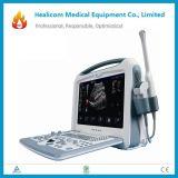 De Hy2000 sistema de diagnóstico ultrasónico de Doppler del color portable por completo Digitaces