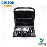 Ультразвук Chison Eco 3 медицинского портативная пишущая машинка 2D B/W стационара