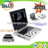 O preço abdominal o mais barato do varredor do ultra-som do portátil de Sun-806h