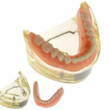 Modelo inferior do implante dental de Overdenture da alta qualidade