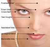 Ácido hialurónico inyectable de Singderm de la fuente para las arrugas faciales