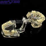Hochleistungs--transparentes erwachsenes zahnmedizinisches unterrichtendes Modell