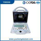 Ce Aprovado 3D Doppler de cor Digital portátil portátil ultra-som Ysd330