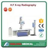De Machine van de Röntgenstraal van het Systeem Xm160A van de Röntgenfoto van de Röntgenstraal van de Apparatuur 200mA van het ziekenhuis