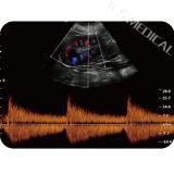 Accessible Systemultra-Portatif de Doppler de couleur de Digitals et Ultra- diagnostique ultrasonique, couleur Doppler