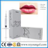 Nuevos llenador de los labios del ácido hialurónico de la inyección y realce seguros del labio