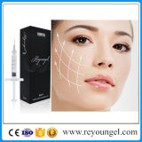 GesichtsHyaluronate saurer Hauteinfüllstutzen für Lippenverbesserung