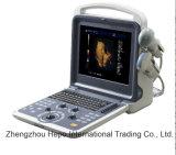 Type échographie-Doppler portative de scanner d'ultrason de couleur