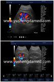 Ce approuvé 3D 4D couleur Doppler machine à ultrasons portable Ysd519