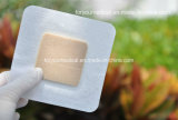 セリウムおよびFDAの抗菌性のSilver Foam Dressing