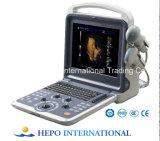 携帯用超音波診断装置タイプポータブルの超音波