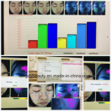 Analisador facial portátil facial Wirh da pele polarizado