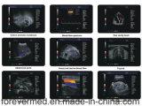 높은 Quilty 가득 차있 디지털 트롤리 색깔 도풀러 초음파 스캐너 (YJ-U60PLUS)