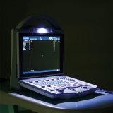 Échographie-Doppler diagnostique de couleur d'instrument de petit hôpital