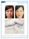 O enchimento do enrugamento do ácido hialurónico de Singfiller para remove o enrugamento