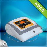 Laser eficaz para el retiro de la vena de la araña y la resucitación de la piel
