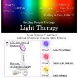 Портативный затягивать стороны обработки перевозчика шрама угорь терапией топления фотона PDT СИД светлый