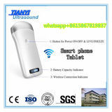 iPhoneのiPadのアンドロイドのための手持ち型の無線超音波システム