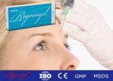 OEM Hyaluronic 산 피부 충전물 주사 가능한 미용 제품