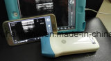Sonde sans fil d'ultrason d'iPad androïde d'iPhone