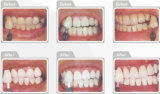 Dental Clinic를 위한 25% 수소 Peroxide Whitening Kit