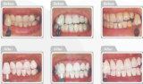Idrogeno Peroxide Whitening Kit di 25% per Dental Clinic
