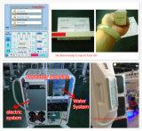 Machine de laser du chargement initial rf d'Elight pour l'épilation