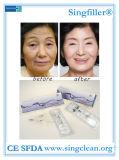 Ce Singfiller ácido hialurónico relleno dérmico para la cirugía cosmética