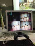 USBのIntra-Oralカメラの終わり患者