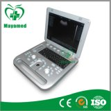 나 A009b의 4D Laptop Ultrasound Scanner