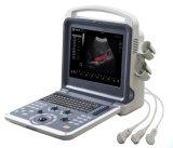 Machine de Doppler Ultrasounic de couleur